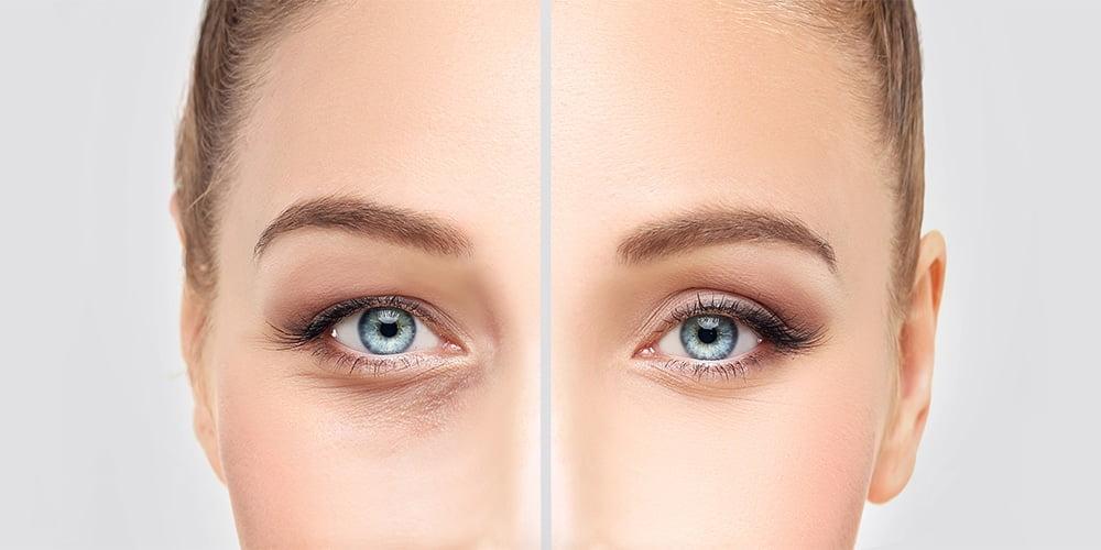 øvre og nedre øyelokk