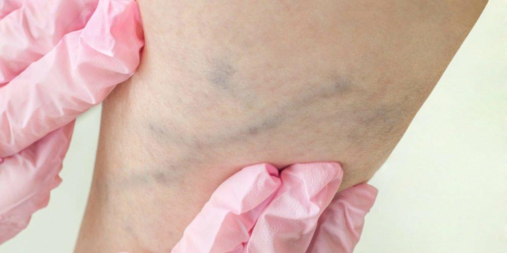 Sklerosering Dr Aasen Aviva 1 e1551962313838