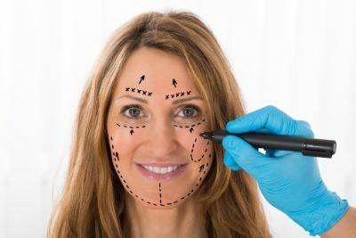 Ansiktskirurgi
